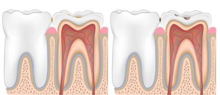 tratament carii dentare incipiente, Paris Dental clinic