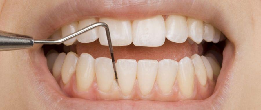 consultatie parodontala, Paris Dental Clinic
