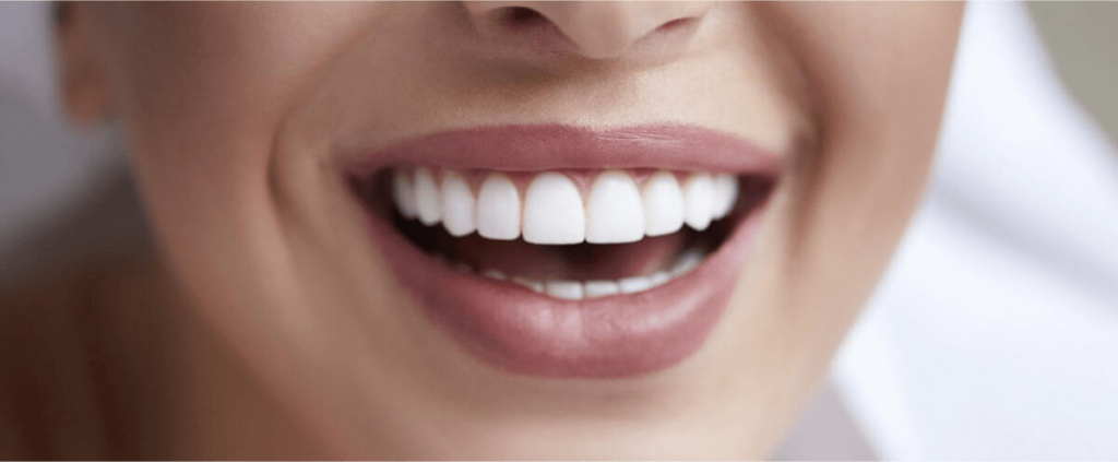 dental veneers Paris Dental Clinic