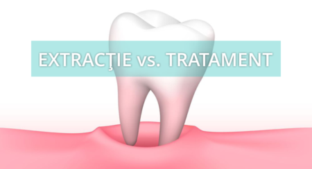extractie vs tratament, Paris Dental Clinic