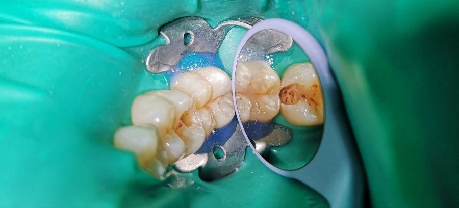 tratamentul cariilor interdentare, Paris Dental Clinic