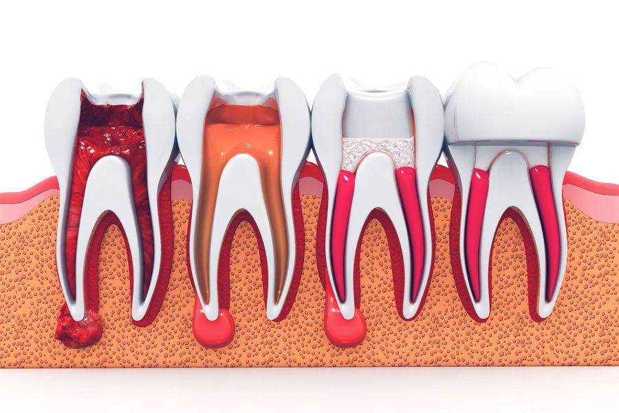 tratamente endodontice, tratamente de canal - Paris Dental Clinic