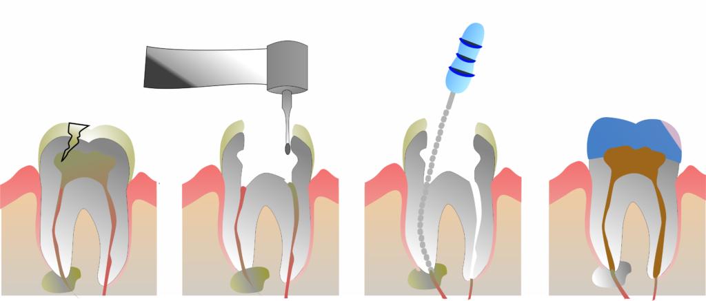 tratamente endodontice, tratamente de canal Paris Dental Clinic