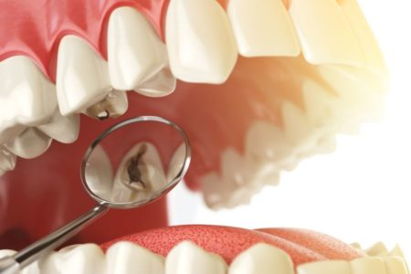 preventie carii dentare, tratament carii - Paris Dental Clinic