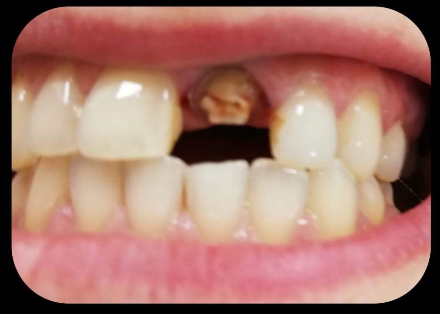 după îndepărtarea unui dinte de înțelepciune, articulația doare