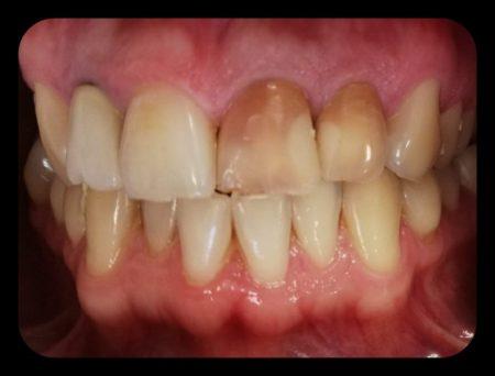 modificare culoare dinti, reabilitare estetica, Paris Dental Clinic