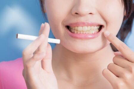 igiena dentara la fumatori, dr Corina Marc @ Paris Dental Clinic