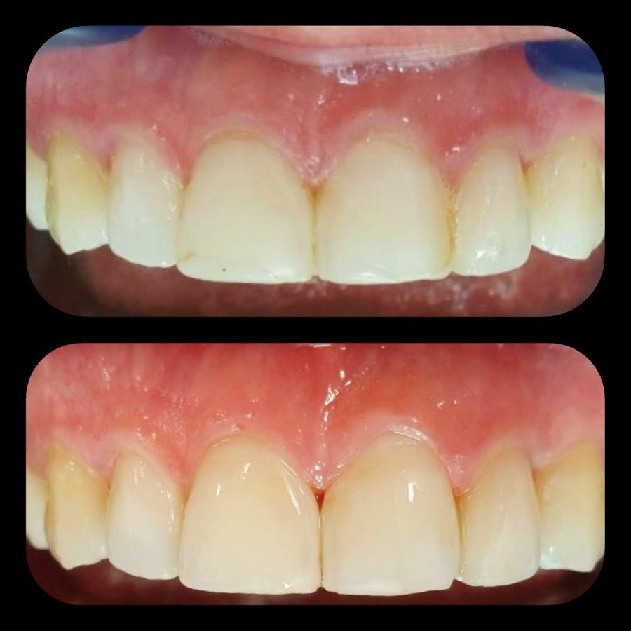 scăderea în greutate a cariilor dentare
