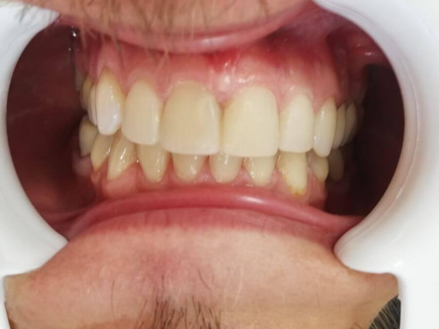 Terapia canalului radicular (endodonție) -