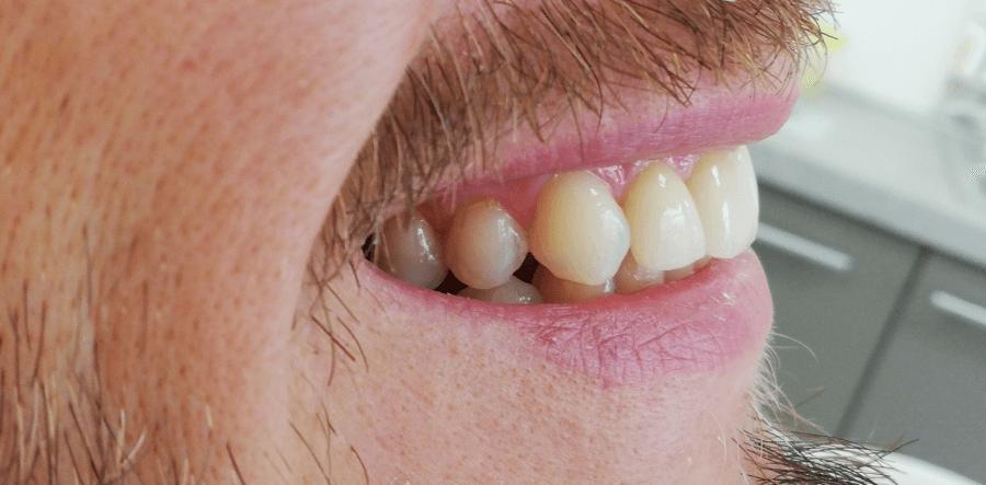 pierderea în greutate de igienă dentară