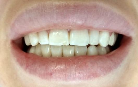 probleme dinti nanici - stomatologie Cluj - fatete dentare Cluj