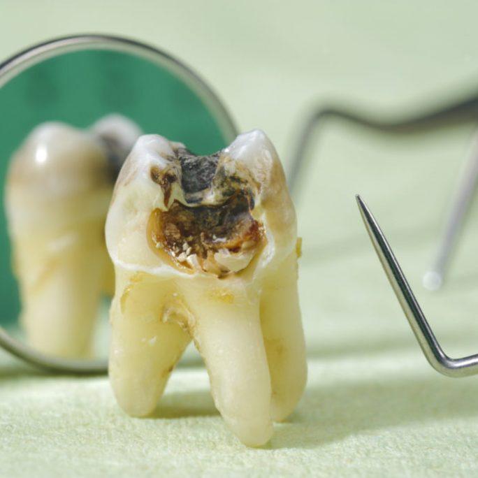 stomatologie generala Paris Dental Clinic, stomatologie Cluj, dental clinic Cluj