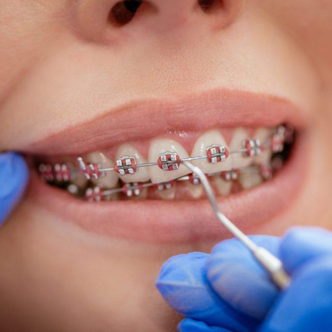 ortodontie - Paris Dental Clinic, stomatologie Cluj, dental clinic Cluj