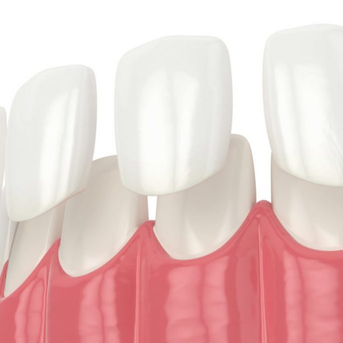 Estetica Dentara Paris Dental Clinic, stomatologie Cluj, dental clinic Cluj