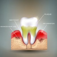 paradontologie - Paris Dental Clinic, stomatologie Cluj, dental clinic Cluj